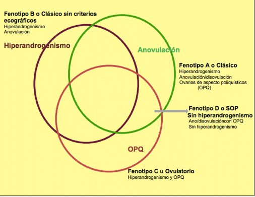 causas del síndrome de ovario poliquístico
