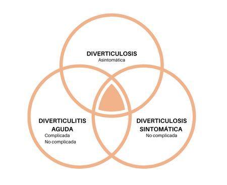 variants de diverticulosi